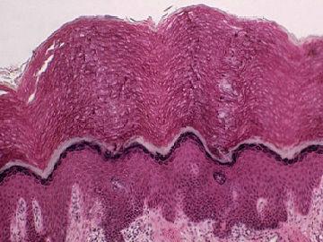 """港媒:科学家称发现人体新""""器官"""" 或与癌细胞扩散有关"""