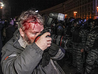 走近战地记者:即使满脸鲜血也要拿起相机