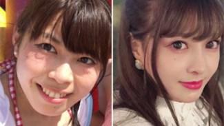 亚洲人更在意颜值?日媒:日本整形头面部占90%
