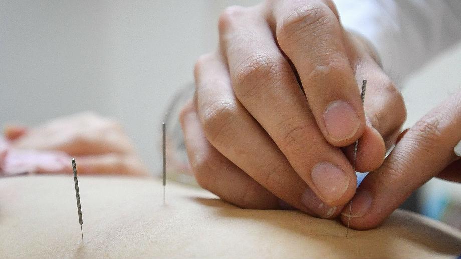西班牙高校开针灸课程引争议 西媒:他们对针灸一无所知